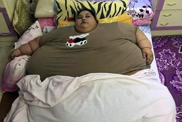 [视频]曾被起重机吊起送医 世界最胖女性26天减240斤