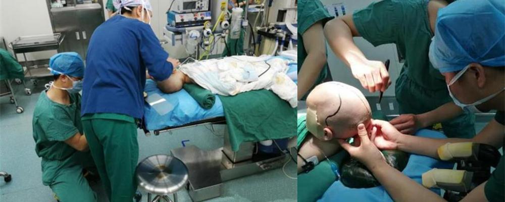 """[视频]湖南:儿童医院3D打印技术 助""""狭颅症""""宝宝重建颅骨"""